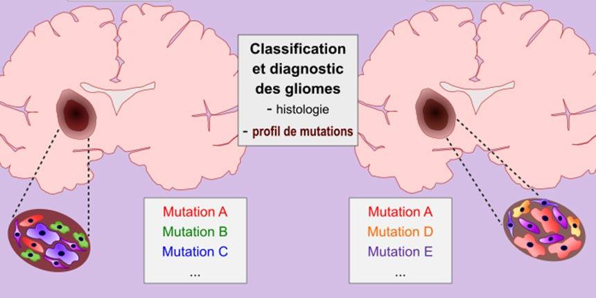 impact-fonctionnel-des-mutations-TCF12-dans-les-gliomes