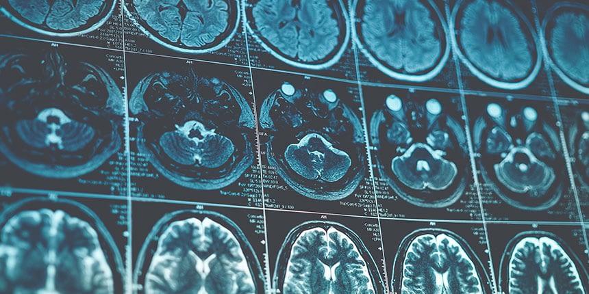 Tumeur au cerveau : les examens