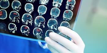 Les causes des tumeurs au cerveau sur le plan génétique